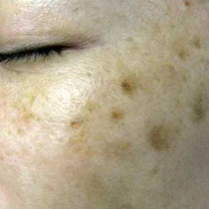 POST-ACNE PIGMENTATION